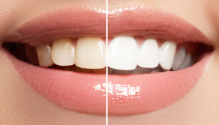 teeth withening